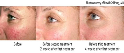 what does light therapy do for your skin how to use light therapy to heal rosacea redness