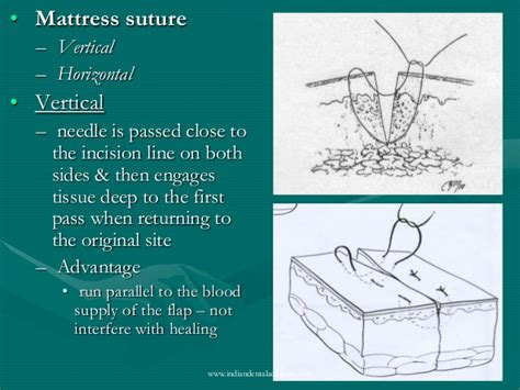 suture materials certified fixed orthodontic courses by
