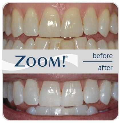 cosmetic dentistry  dental prosthetics dental