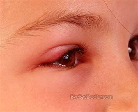 eyelid swollen swollen eyelid treatment causes pictures symptoms remedies