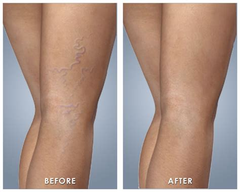 spider veins on the legs treatments varicose veins and spider veins treatment miami vein