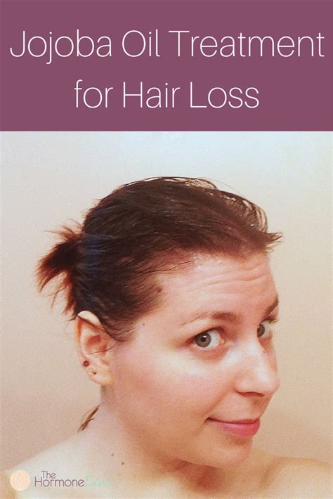how to use lavender to treat hair loss ehow jojoba oil treatment for pcos hair loss the hormone diva