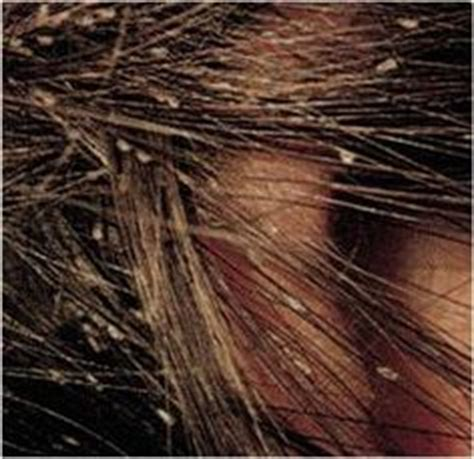 what does 1000 individual hairs look like 1000 images about pictures of lice and nits on pinterest