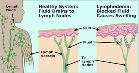 Lymphatic System Detox Symptoms by 7 Easy Ways To Quickly Unclog Your Lymph Nodes To Reduce