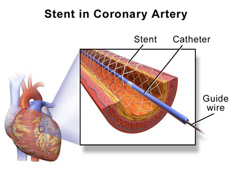 coronary angioplasty with or without stent implantation stent wikipedia