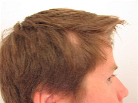 hairstyles for bald patches at the sides bald spots on head pictures to pin on pinterest pinsdaddy