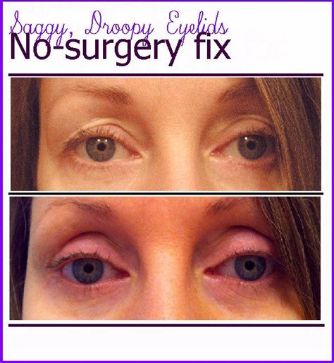 Mcgowans Droopy Eye Problem by Get Rid Of Those Saggy Droopy Eyelids Without Surgery
