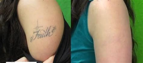tattoo removal pain finetouch dermatology