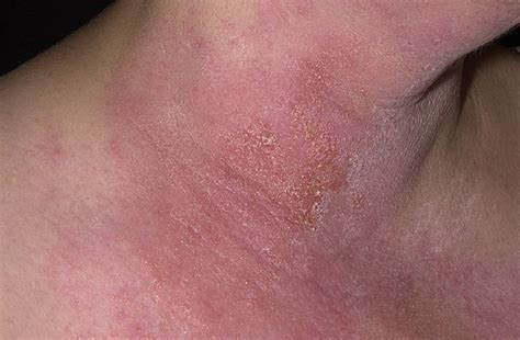 rash on neck poison blisters pictures of poison