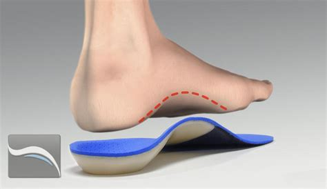 orthotics belfast custom orthotics laser foot scanning