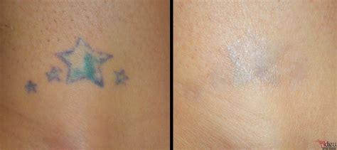 tattoo removal in pune enlighten laser tattoo removal in enlighten laser tattoo