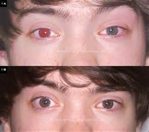 eye color implants iris implants advance but continuing challenges