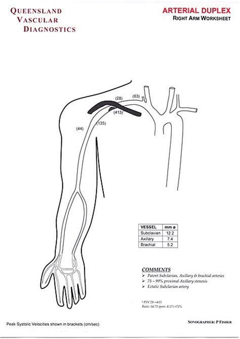 Vascular Ultrasound Worksheets by All Worksheets 187 Vascular Ultrasound Worksheets