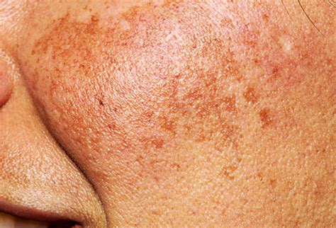 skin conditions in dark skin webmd better information pictures what does your face say about your health