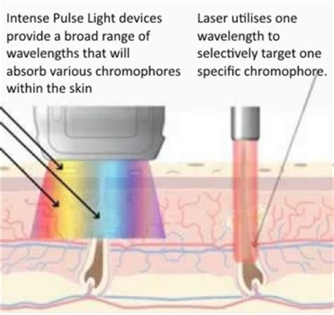diode vs ipl diode laser permanent hair reduction exhale