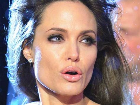 celeb pics today celebrity lips real or fake today