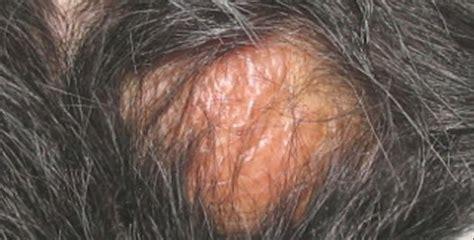 urticaria cuero cabelludo enfermedades varias cuidemos nuestra salud taringa