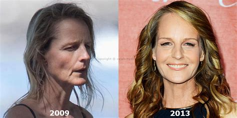 Detox Icunt Before And After Plastic Surgery by Helen Hunt Plastic Surgery Went Awry Dr