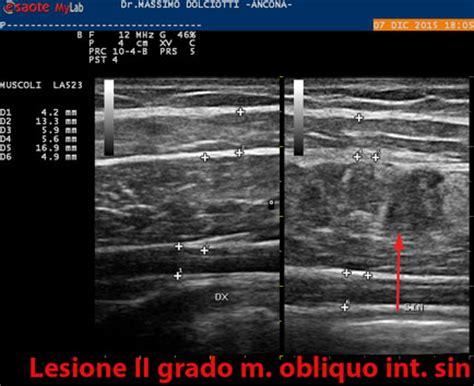 dolore interno fianco sinistro lesioni muscolo tendinee
