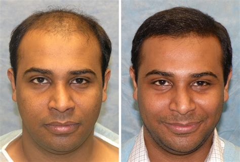 hair transplant before and after hair transplant surgery cost results and celebrity