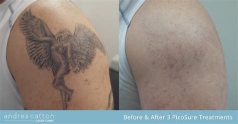 tattoo removal angel picosure 174 tattoo removal uk andrea catton laser clinic