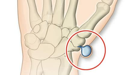 schmerzen handgelenk innen handgelenksganglion 220 berbein apotheken umschau