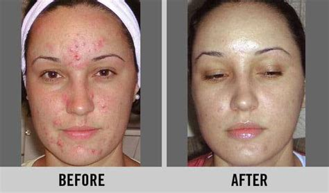 Serum C Plus By Derma Prima peeling de 225 cido glic 243 lico fotos antes e depois