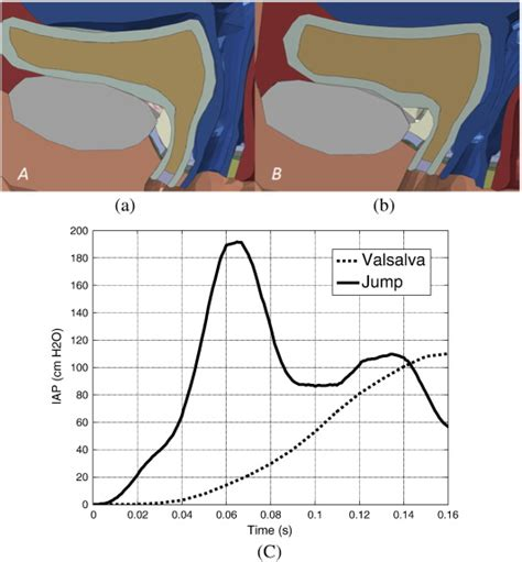 pelvic floor dynamics during high impact athletic