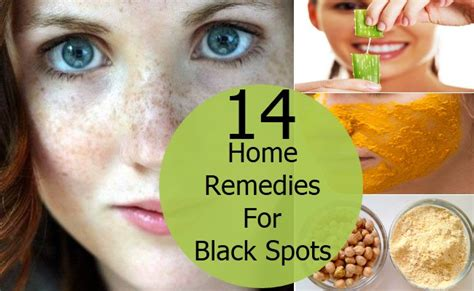 top 14 home remedies to reduce black spots on your