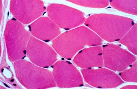 transverse section of skeletal muscle hls muscle tissue skeletal muscle fibers transverse