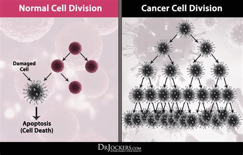 How To Detox Dead Cancer Cells From Chemo And Radiation by The Difference Between Normal And Cancer Cells Drjockers