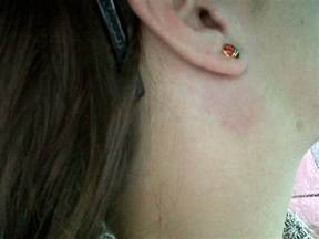 swollen lymph nodes ear pictures to pin on
