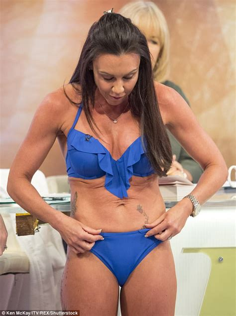 celebrity c section scars michelle heaton dons skimpy bikini after baring her scars