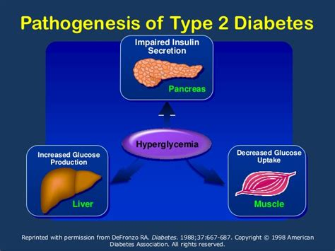 Pathophysiology Of Type 2 Diabetes Essay by Ueda 2016 2 Pathophysiology Classification Diagnosis Of Diabet