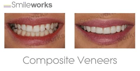 professional teeth whitening liverpool bright  shade