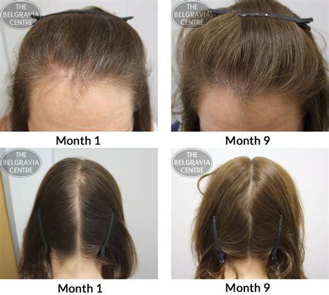 male pattern hair loss reversal telogen effluvium vs male pattern baldness www pixshark
