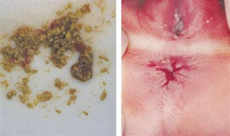 Preemie Blood In Stool by 01 Acquired Intestinal Ileus Digestive Tract Bleeding In