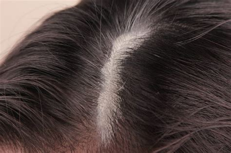 How To Clean Sebum From The Scalp Livestrong