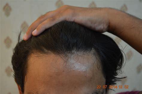 hair transplant jeddah hair loss treatment karachi