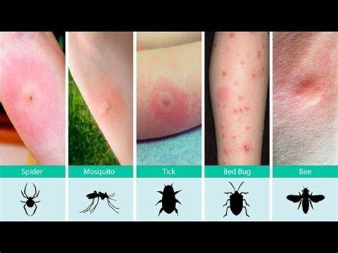 identifying bed bug bites best 25 identifying bug bites ideas on pinterest insect