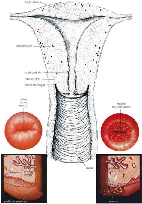 portio uterina cervicite uterina cervicite