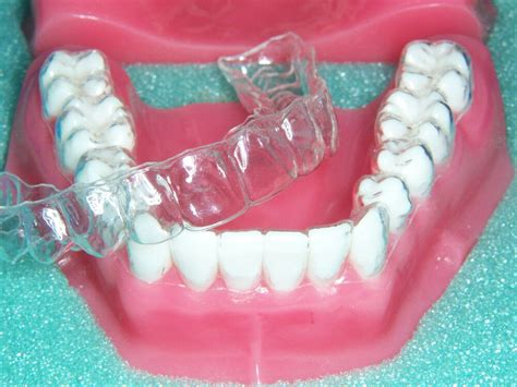 bright professionally  dentalteeth retainers