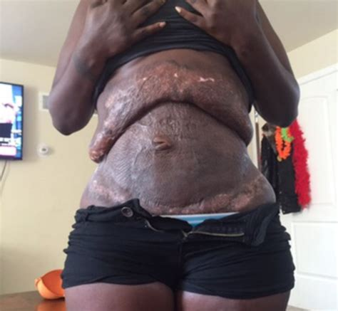 Tummy Tuck Bad And by Reveals Horrific Scars After Botched Tummy Tuck In
