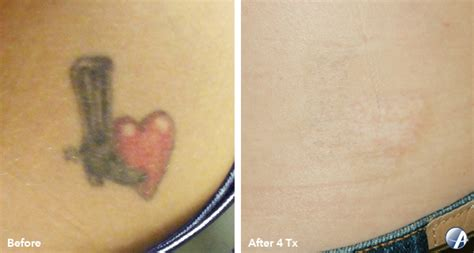 tattoo removal before amp after photos tattoo removal