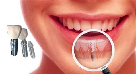 Berapa Untuk Pemutihan Gigi apakah implan gigi aman untuk kesehatan oleh drg ika ratna spbm kompasiana