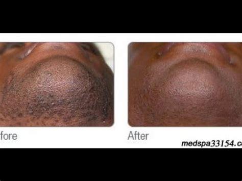 hair removal for men bay area laser hair removal in miami for black men youtube