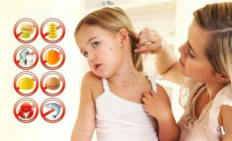 gastrite erosiva alimentazione allergie alimentari sintomi cause e diagnosi di un allergia