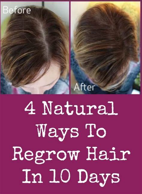 does reducing 5ar regrow hair 30 best images about hair thickening on pinterest regrow