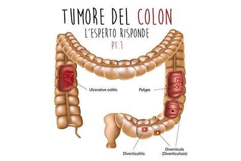alimentazione intestino infiammato tumore colon l esperto risponde prima parte