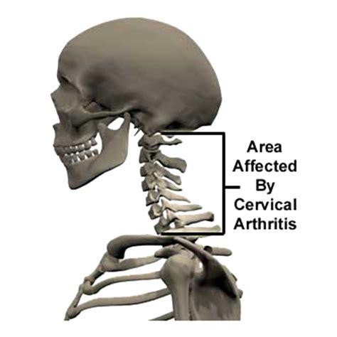 mal di testa psicosomatico liberazione della zona cervicale dott ssa e naturopata
